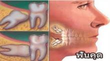 ทำไมถึงต้องผ่าฟันคุด