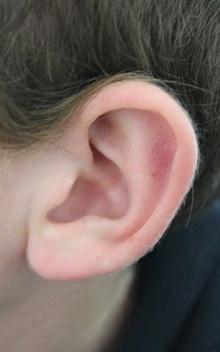 วิธีการดูแลรักษา สุขภาพหู