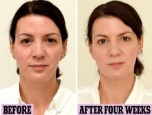 สตรีชาวอังกฤษทดลองดื่มน้ำวันละ 3 ลิตร ผ่านไป 4 อาทิตย์ผลก็คืออย่างที่เห็น!