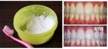 DIY ฟันขาวง่ายๆ ทำได้ที่บ้าน ขาวภายใน 1 นาที (ชมคลิป)