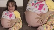 หญิงตัวเล็กที่สุดในโลก พร้อมให้กำเนิดลูกคนที่3
