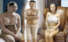 อยากสวยต้องทน!!เปิดชีวิตหลังศัลยกรรม วัฒนธรรมใหม่ที่เราจะถูกตัดสินที่หน้าตา!!