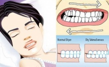 วิธีแก้การนอนกัดฟันแบบง่ายๆ อยากหายต้องลองดูนะ!!