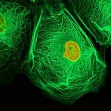 วิธีสังเกตอาการเบื้องต้นของมะเร็ง ชนิดต่างๆ