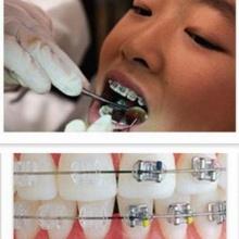 ทันตกรรมจัดฟันคืออะไร