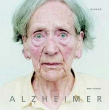 10 อาการนำโรคอัลไซเมอร์