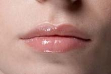 ทราบไหมว่าริมฝีปากแห้งกว่าผิวหนังถึง6เท่า