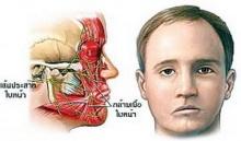 หน้าเบี้ยวครึ่งซีก ผลเส้นประสาทอักเสบ