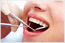 หลาย ๆ คำถามเกี่ยวกับการอุดฟัน