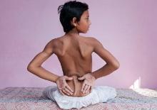 ฮือฮาอินเดียแห่นับถือ′เด็กมีหาง′ เชื่อเป็น′หนุมาน′กลับชาติมาเกิด