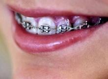 จัดฟันจำเป็นด้วยหรือ?
