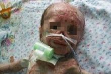 สุดเศร้า!!! ทารกน้อยโดนพ่อแม่ทิ้ง ไม่ใยดี หลังถูกตู้อบเผาผิวจนเหี่ยวย่น!!!
