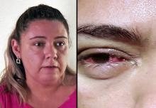หมอถึงกับอึ๊ง!! เมื่อหญิงคนนี้ร้องไห้แล้วน้ำตาออกมาป็นสิ่งนี้? เกิดอะไรขึ้นกับเธอ?