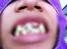 ไม่คุ้มเลย!! ดูไว้เป็นอุธาหรณ์ ผลของการ จัดฟัน-รีเทนเนอร์แฟชั่น เถื่อน!!!