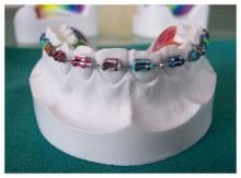 เคล็ดลับการดูแลเมื่อเริ่มจัดฟัน