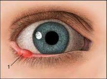 หนองในตา วิธีง่ายๆโดยไม่ต้องผ่าตัด
