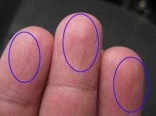 ดูลักษณะรูปก้นหอยในนิ้วมือ