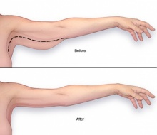 โบกมือลาปัญหาแขนใหญ่ด้วย 5 วิธีง่ายๆ