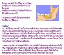 ฟันคุด..เจ็บจัง
