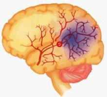 อาการบอกตำแหน่งหลอดเลือดสมองผิดปกติ