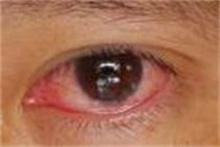เมื่อตาแดงระบาด ต้องหมั่นล้างมือให้สะอาด