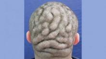ตะลึง หนุ่มอาการประหลาดมันสมองปูดบวมด้านหลัง