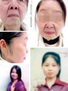 หญิงจีนวัย27แต่หน้าแก่ราวอายุ70