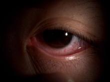 พบเชื้อตาแดง ตัวใหม่ อันตรายถึงขั้นตาบอด