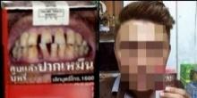 เผยโฉมหนุ่มนายแบบฟันหน้าซองบุหรี่ ตัวจริงหรือนี่?? มาชมภาพกัน