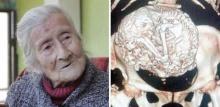 คุณยายวัย 91 ปี ปวดท้องมาก แต่พอแพทย์ตรวจก็พบว่า ในท้องกลายเป็นแบบนี้
