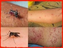 นี่แหละอาการของ โรคไข้เลือดออกสายพันธุ์ใหม่ !!