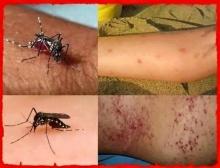 โรคไข้เลือดออกสายพันธุ์ใหม่ จะมีอาการดังนี้ รู้ก่อนจะได้รักษาทัน