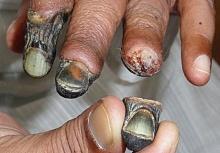 Krokodilยาเสพติดที่อันตรายที่สุดในโลก เปลี่ยนคนให้กลายเป็นผีดิบ!!