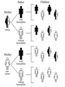 ฮีโมฟีเลีย : โรคเลือดไหลไม่หยุด