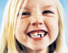 วิจัยพบ!! น้ำมันมะพร้าวป้องกันฟันผุ-โรคปากอักเสบจากเชื้อรา