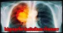ไม่สูบบุหรี่ทำไมยังเป็นมะเร็งปอด?
