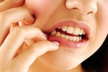 7 สมุนไพร สยบอาการปวดฟัน