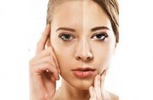 4 วิธีง่ายๆ ที่ช่วยลดฝ้า กระ จุดด่างดำบนใบหน้า