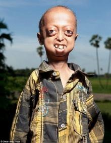 สลดเศร้า เด็ก 14 ปี ป่วยเป็นโรคคนแก่ ร่างกายเหมือนคนอายุร้อยกว่าปี นับถอยหลังตาย!