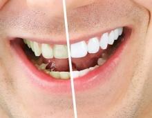 วิธีกำจัดคราบเหลืองบนผิวฟันด้วยวัตถุดิบที่หาได้ง่าย ๆ