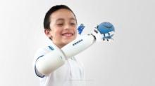 """""""แขนเทียมเลโก้"""" นวัตกรรมสร้างรอยยิ้มให้กับเด็กพิการ"""