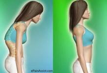 มีวิธีแก้หลังค่อม ง่ายๆด้วย 5 ท่าบริหารร่างกายมาฝาก!!