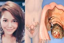 รู้เท่าทัน 'มะเร็งรังไข่' โรคร้ายที่'พิม ซาซ่า' เป็น ผู้หญิงควรอ่าน!!