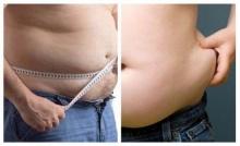 ปัจจัยก่อ โรคอ้วน