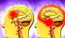 อัมพาตจากหลอดเลือดสมองแตก