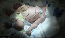 แพทย์ตะลึงทารกหญิงชาวอังกฤษเกิดมา ไม่มีเลือด ในร่างกาย