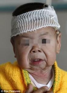หนูน้อย 1 ขวบชาวจีน ป่วยประหลาด ผิวหนังเหี่ยวเป็นคุณยาย