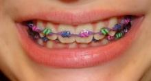 แฉดัดฟันเถื่อนขายว่อนเน็ตวัยรุ่นแห่ซื้ออาจถึงตาย