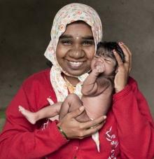 """พบทารกน้อยอินเดียป่วยเป็น """"โรคมนุษย์หมาป่า"""" แต่กำเนิด"""