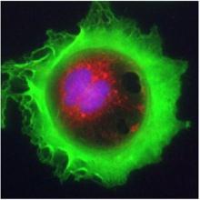 ภาพถ่ายยอดเยี่ยม เซลล์มะเร็ง